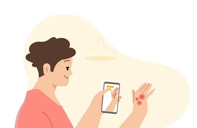 Google identificar problemas de pele
